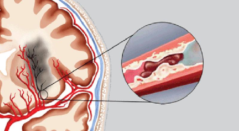 Thực hư thầy thuốc chữa bệnh tai biến mạch máu não nức tiếng đất Mỏ