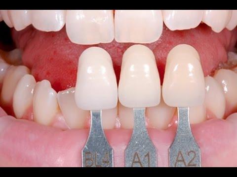 Những điều đáng cân nhắc trước khi bọc răng sứ thẩm mỹ