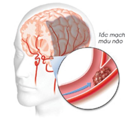 """Tai biến mạch máu não: """"Sát thủ"""" trong thời tiết giá rét"""