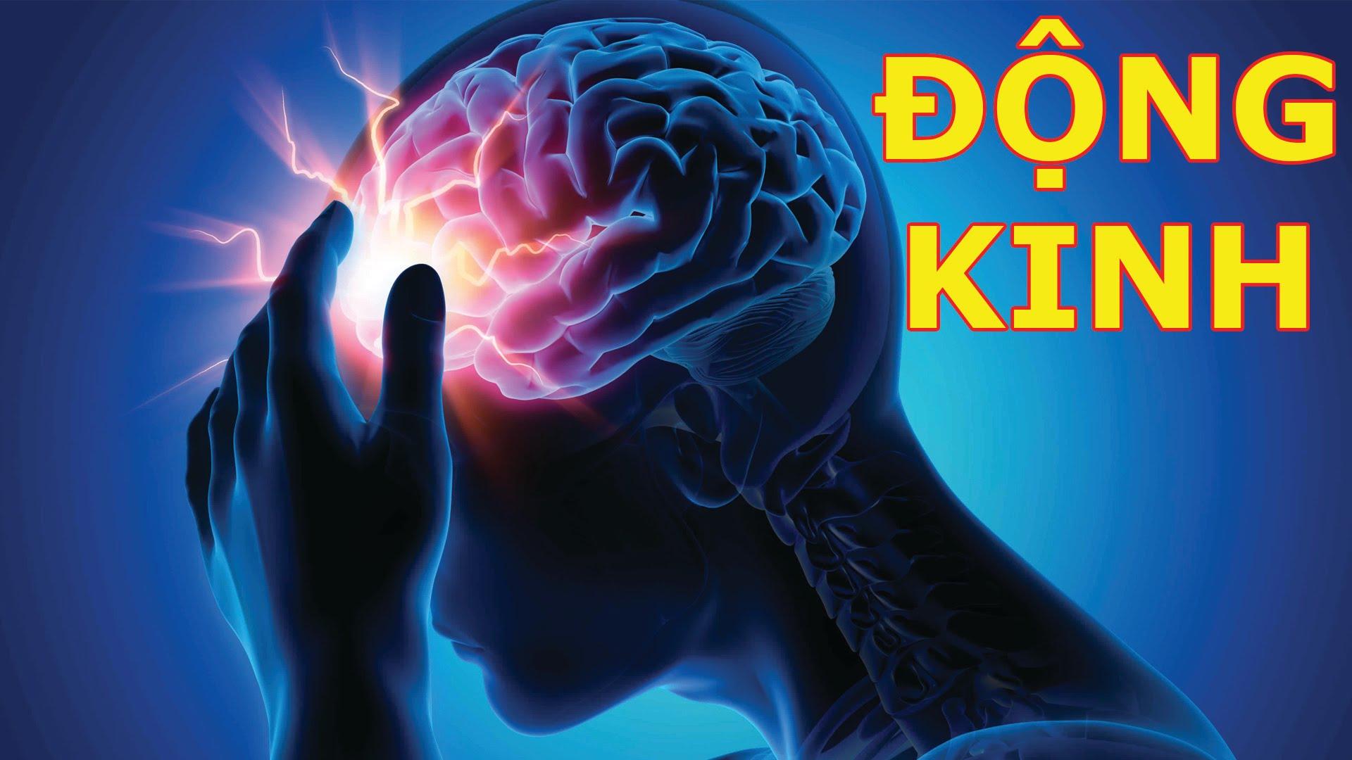 Giải mã bệnh động kinh có ảnh hưởng đến trí tuệ không?
