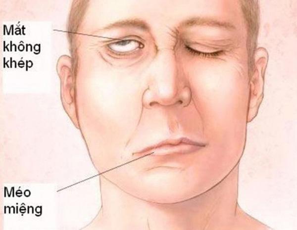 Những dấu hiệu cảnh báo dấu hiệu bị đột quỵ tránh nguy cơ tử vong