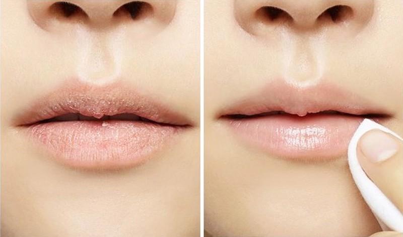 Học lỏm các cách tẩy tế bào chết môi đúng cách từ chuyên gia