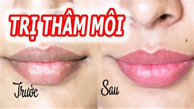 Trị thâm môi tại nhà không khó với 10 cách đơn giản sau