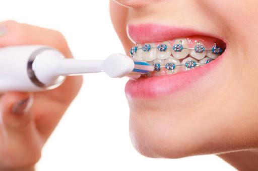 Ghi nhớ ngay cách giữ vệ sinh khi niềng răng cực hiệu quả sau đây